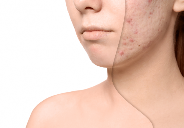 acne-scar-treatment-before-after-